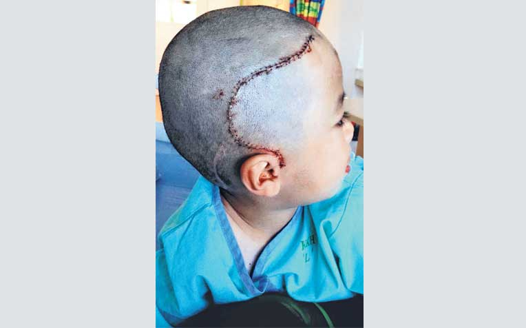 on Javier Lim's skull are proof of the painful operations he has had over the past three years.