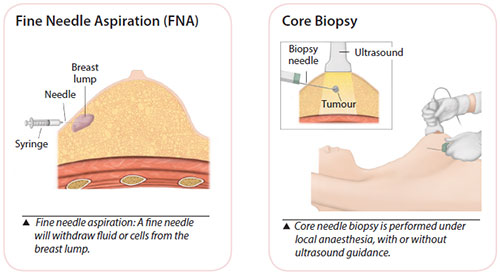 Breast cancer diagnosis - Biopsy