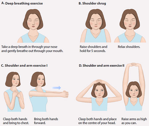 Breast cancer post-operative care - Arm exercise