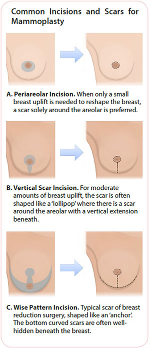 Breast cancer treatment - Mammoplasty