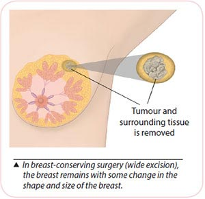 Breast cancer treatment - Breast-conserving surgery wide excision