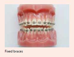 Fixed braces treatment for malocclusion available at National Dental Centre Singapore.