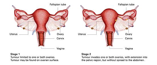 4 stages of ovarian cancer KKH